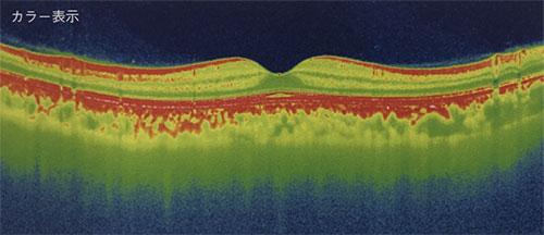 東高円寺眼科のOCT(光干渉断層計)黄斑疾患の例1