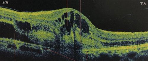 東高円寺眼科のOCT(光干渉断層計)黄斑疾患の例2