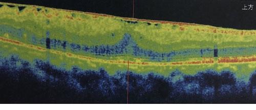 東高円寺眼科のOCT(光干渉断層計)黄斑疾患の例3