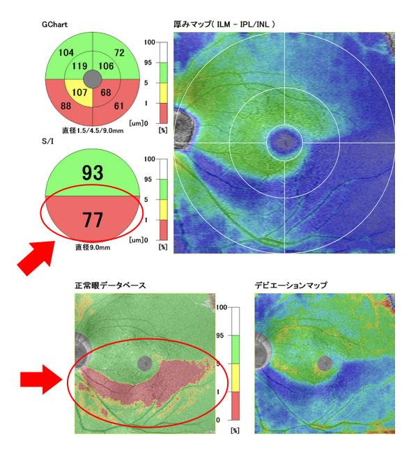 東高円寺眼科のOCT(光干渉断層計)緑内障早期発見